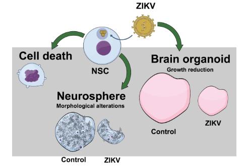 zika virus and brain malformation