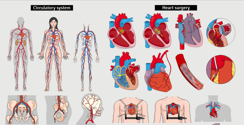 Cardiology: using medical illustrations to communicate with your patients