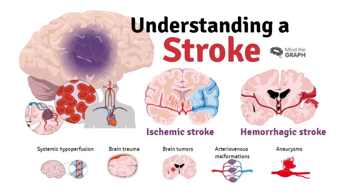 Stroke symptoms and risk factors